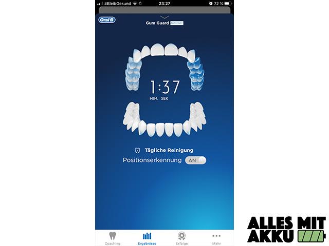 Oral-B Genius 10000N - App Positionserkennung